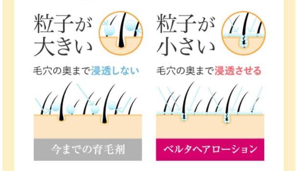 ベルタヘアローションと他の育毛剤の違いの説明